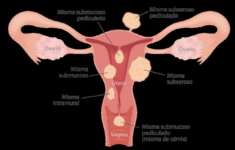 Miomas-uterinos-tipos